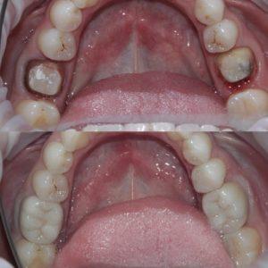 Восстановление жевательных зубов коронками до и после