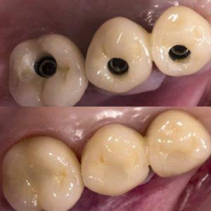 Имплантация в области жевательной группы до и после