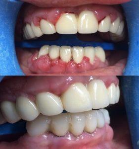 Лечение пародонтита до и после