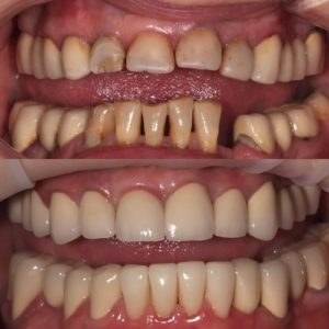 Тотальное протезирование до и после
