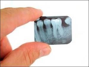 радуга стоматология воронеж