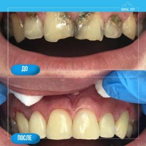 Лечение кариеса и реставрация зубов