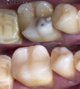 Лечение зуба до и после