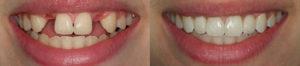 Имплантация до и после пломбирЪ