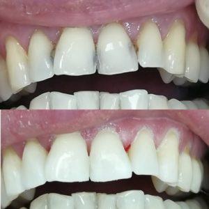 Лечение и реставрация передних зубов до и после