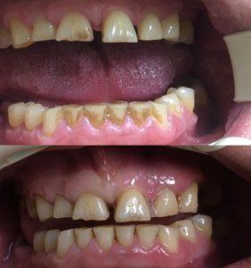 Профессиональная гигиена и осветление до и после