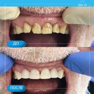 Лечение кариеса и реставрация зубов верхней челюсти