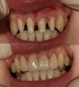 Протезирование и установка коронок в Невской стоматологии