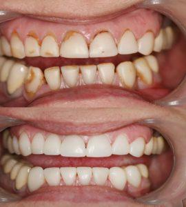 Реставрация зубного ряда Воронеж