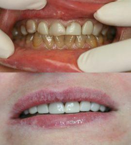 Реставрация зубов в Воронеже