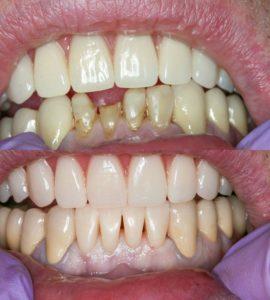 Реставрация четырех нижних зубов в Воронеже