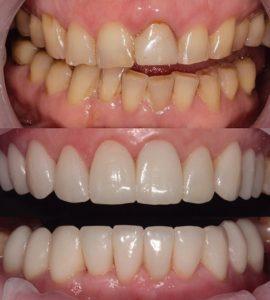 Установка винир в Невской стоматологии