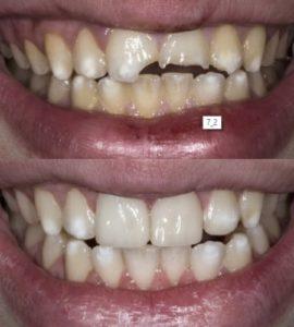 Установка имплантатов до и после