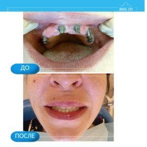 Установка имплантатов зубов верхней челюсти