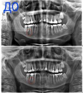 Невская стоматология эндодонтия