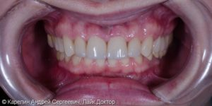 Стоматология «Улыбка» фото 5